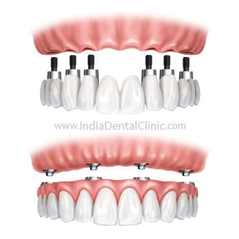 Image for Dental Offer Cheap offer on first Dental Implant