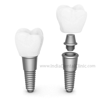 Image for Dental Offer AN SPECIAL DISCOUNT OFFER ON DENTAL IMPLANTS