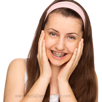 Image for Dental Offer Orthodontic treatments