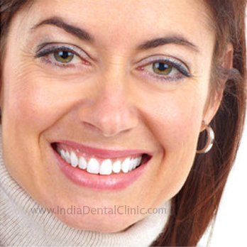 Image for Dental Offer ceramic veneers