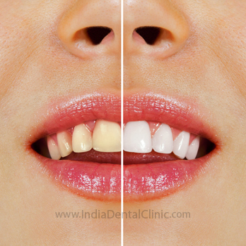 Image for Dental Offer Professional Laser Teeth  Whitening Now @ only Rs.