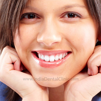 Image for Dental Offer Smile Makeover with Dental Veneers
