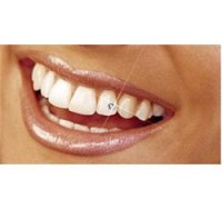 Dental Treatment image of 32 Stars Dental Clinic