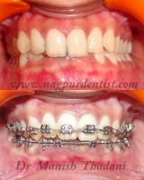 Dental Treatment image of Nagpur Dentist -orthodontic & Dental Implant Clinic