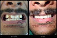 Dental Treatment image of Oracare Dental Centre