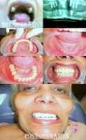 Dental Treatment image of Shraddha Dental Care