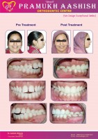 Dental Treatment image of Pramukh Aashish Orthodontic Clinic