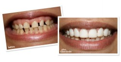 Dental Treatment image of Kapoor Dental Clinic And Implant Centre