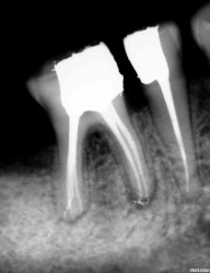 Dental Treatment image of Reliable Dental Clinic
