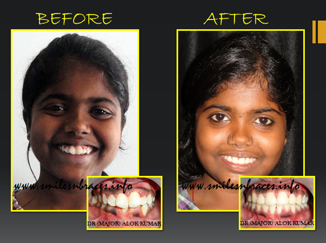 Dental Treatment image of Smiles N Braces Orthodontic Care Centre