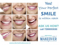 Dental Treatment image of Dental Makeover