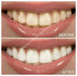 Dental Treatment image of Mumbai Dental Clinic- Cosmetic & Implant Centre